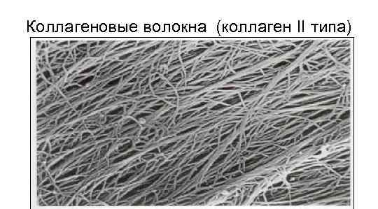 Коллагеновые волокна (коллаген II типа)