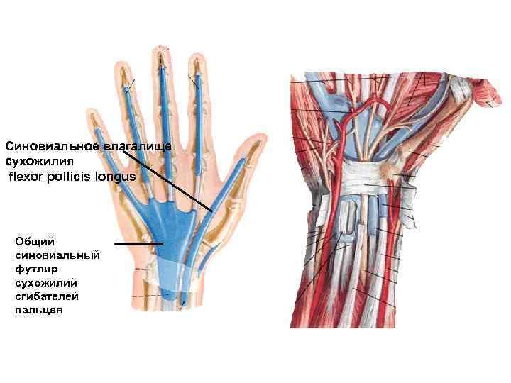Синовиальное влагалище сухожилия flexor pollicis longus Общий синовиальный футляр сухожилий сгибателей пальцев