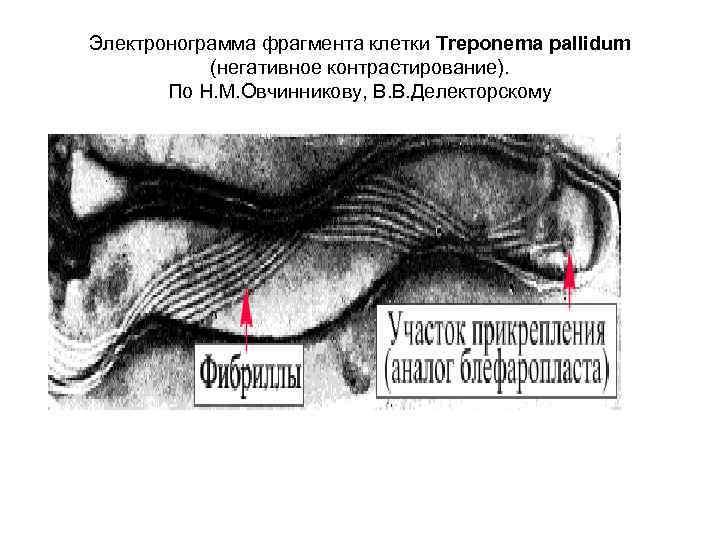 Электронограмма фрагмента клетки Тrероnеmа pallidum   (негативное контрастирование).   По Н. М.