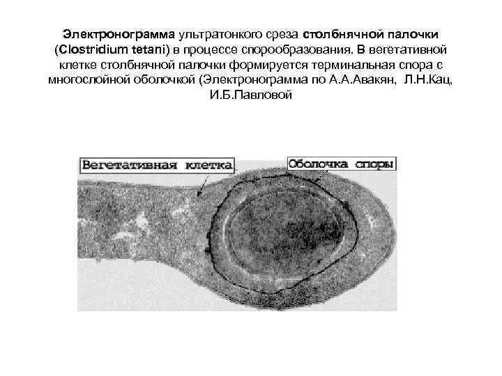 Электронограмма ультратонкого среза столбнячной палочки  (Clostridium tetani) в процессе спорообразования. В