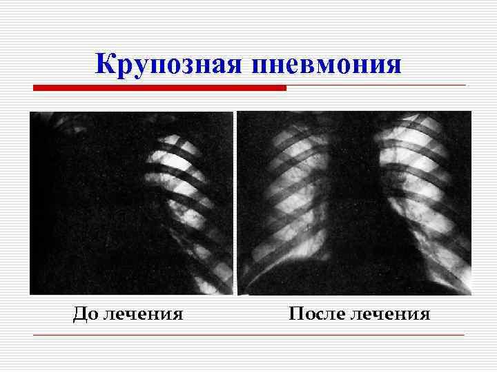 Крупозная пневмония До лечения  После лечения