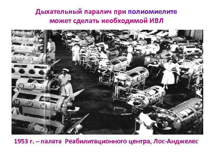 Дыхательный паралич при полиомиелите   может сделать необходимой ИВЛ 1953 г. –