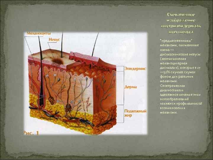"""Схематичное  изображение внутриэпидермаль  ного невуса """"предшественники"""" меланомы, пигментные пятна — диспластические"""