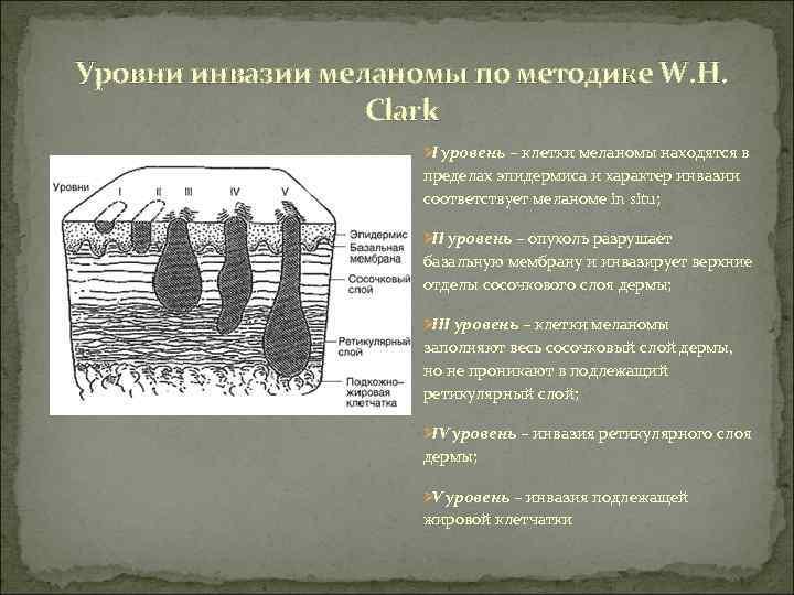 Уровни инвазии меланомы по методике W. H.     Clark