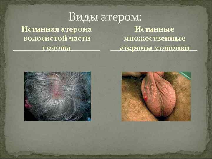 Виды атером: Истинная атерома  Истинные волосистой части множественные головы
