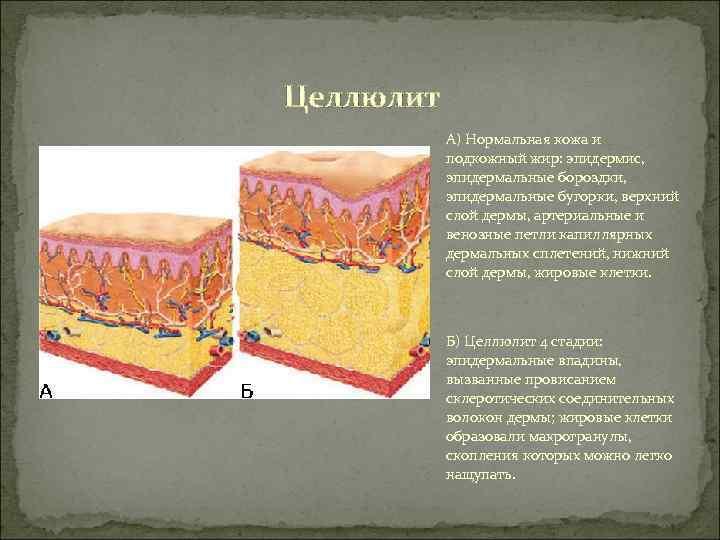 Целлюлит  А) Нормальная кожа и   подкожный жир: эпидермис,   эпидермальные