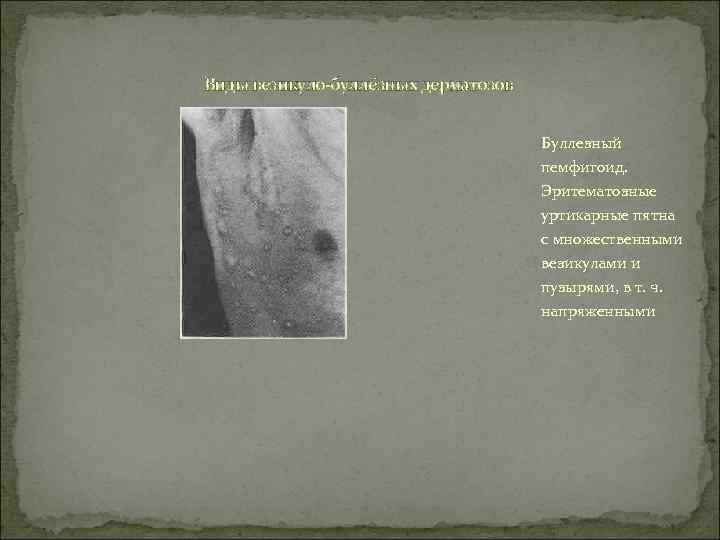 Виды везикуло-буллёзных дерматозов    Буллезный    пемфигоид.