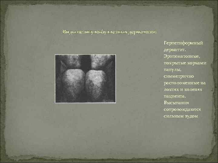 Виды везикуло-буллёзных дерматозов       Герпетиформный    дерматит.