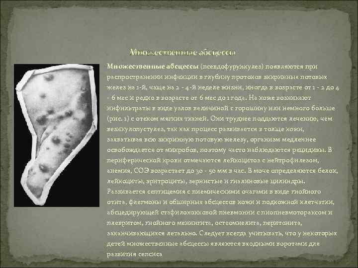 Множественные абсцессы (псевдофурункулез) появляются при распространении инфекции в глубину протоков эккринных потовых