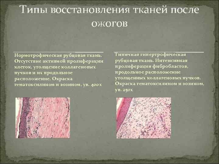 Типы восстановления тканей после    ожогов Нормотрофическая рубцовая ткань. Типичная гипертрофическая