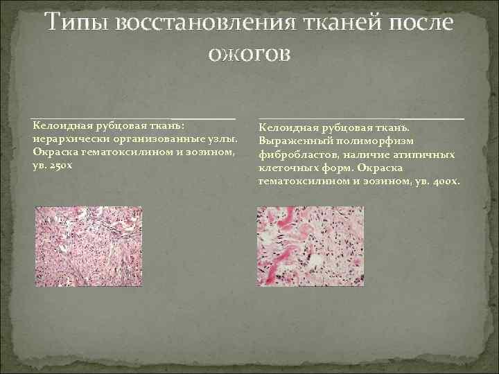 Типы восстановления тканей после    ожогов Келоидная рубцовая ткань: