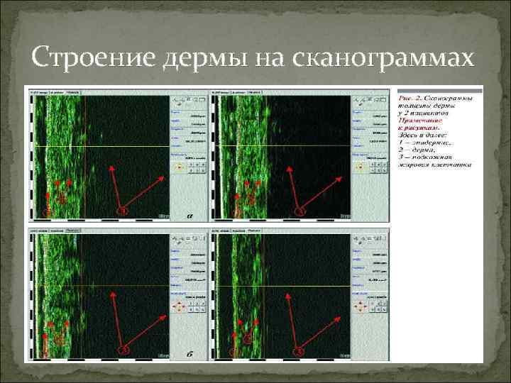 Строение дермы на сканограммах