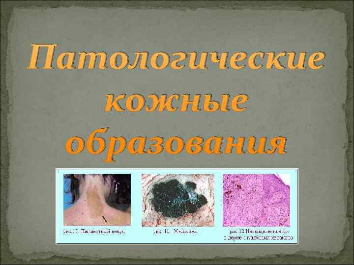 Патологические  кожные образования