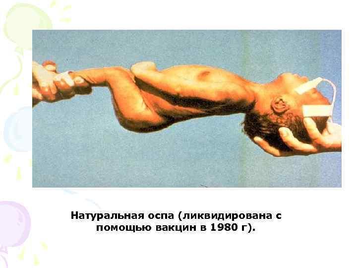 Натуральная оспа (ликвидирована с помощью вакцин в 1980 г).