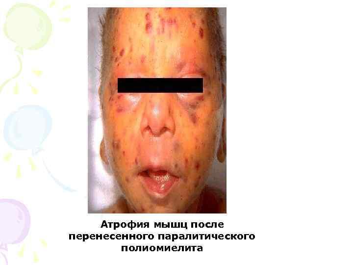 Атрофия мышц после перенесенного паралитического   полиомиелита
