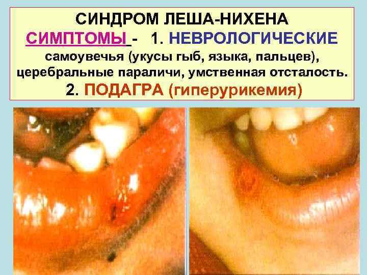 СИНДРОМ ЛЕША-НИХЕНА СИМПТОМЫ - 1. НЕВРОЛОГИЧЕСКИЕ самоувечья (укусы гыб, языка, пальцев), церебральные параличи,