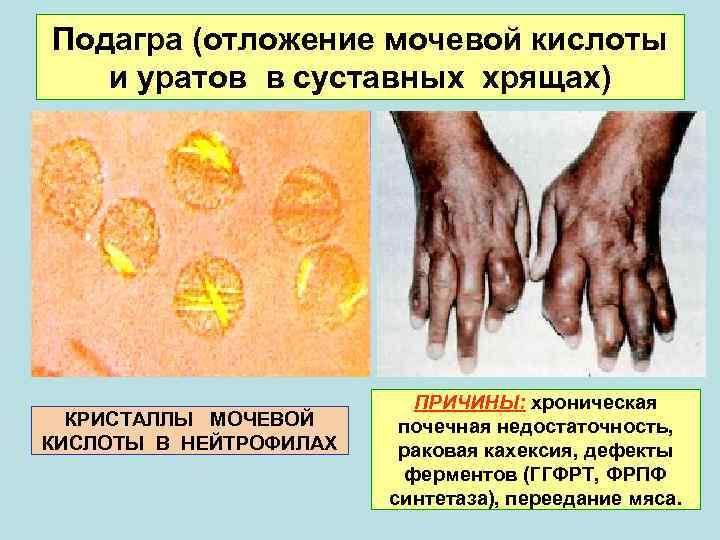 Подагра (отложение мочевой кислоты  и уратов в суставных хрящах)