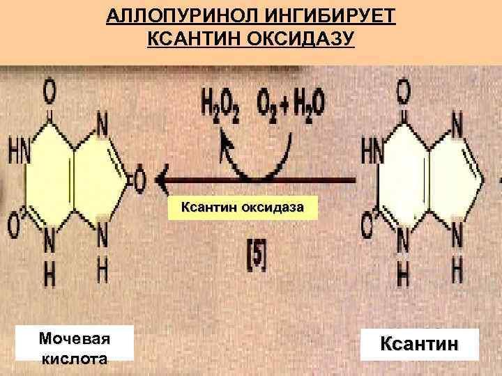 АЛЛОПУРИНОЛ ИНГИБИРУЕТ   КСАНТИН ОКСИДАЗУ    Ксантин оксидаза Мочевая
