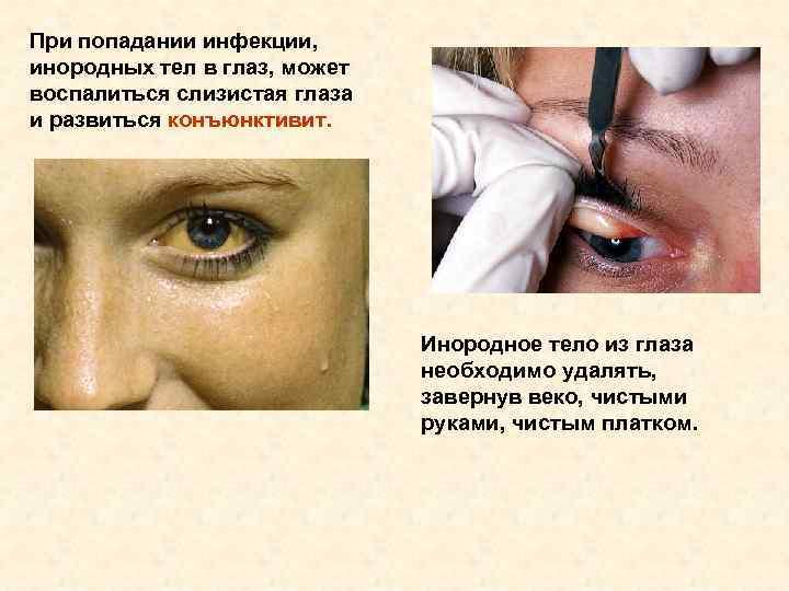 При попадании инфекции, инородных тел в глаз, может воспалиться слизистая глаза и развиться конъюнктивит.