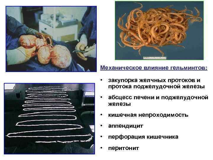 Механическое влияние гельминтов:  • закупорка желчных протоков и  протока поджелудочной железы •