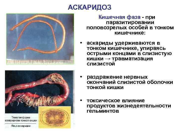 АСКАРИДОЗ   Кишечная фаза - при  паразитировании половозрелых особей в тонком