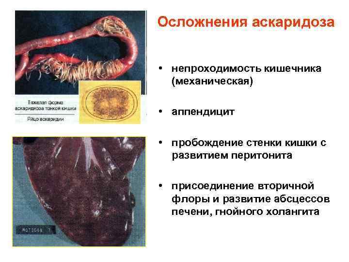 Осложнения аскаридоза  • непроходимость кишечника  (механическая)  • аппендицит  • пробождение