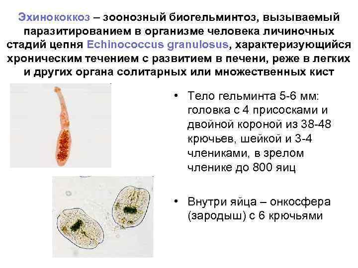 Эхинококкоз – зоонозный биогельминтоз, вызываемый  паразитированием в организме человека личиночных стадий цепня