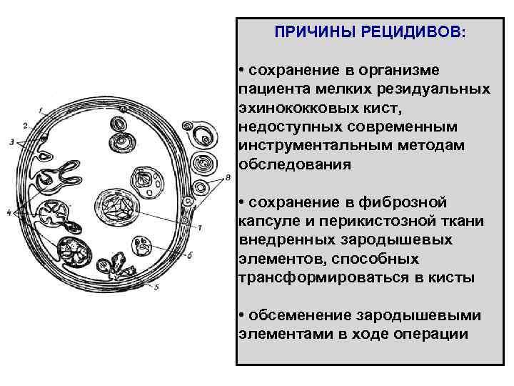ПРИЧИНЫ РЕЦИДИВОВ:  • сохранение в организме пациента мелких резидуальных эхинококковых кист,