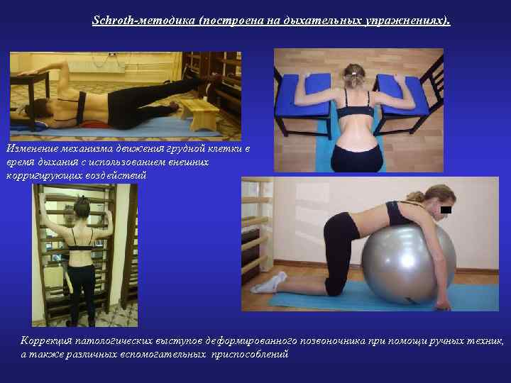 Schroth-методика (построена на дыхательных упражнениях). Изменение механизма движения грудной клетки в время дыхания с