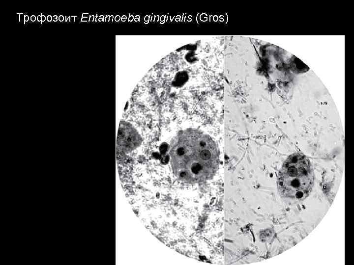 Трофозоит Entamoeba gingivalis (Gros)