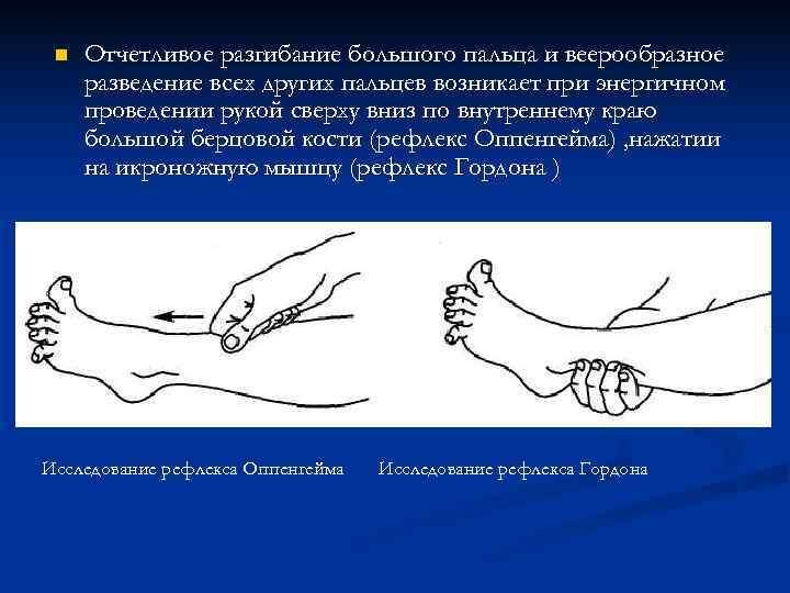 n  Отчетливое разгибание большого пальца и веерообразное разведение всех других пальцев возникает
