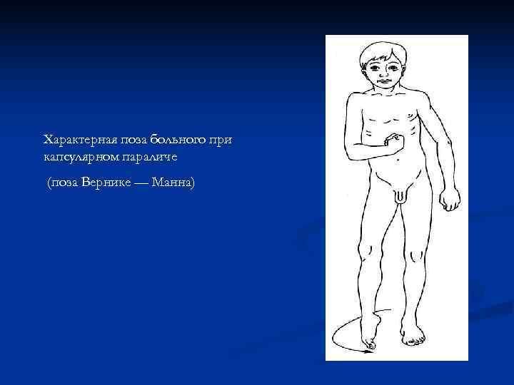 Характерная поза больного при капсулярном параличе (поза Вернике — Манна)