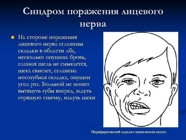 Синдром поражения лицевого    нерва n  На стороне поражения лицевого