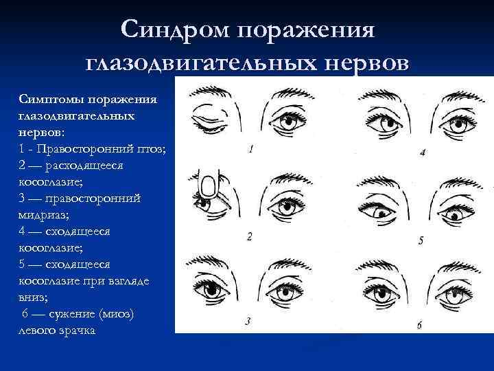 Синдром поражения  глазодвигательных нервов Симптомы поражения глазодвигательных нервов: 1 -
