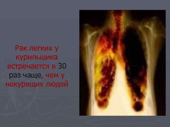 Рак легких у  курильщика встречается в 30 раз чаще, чем у некурящих