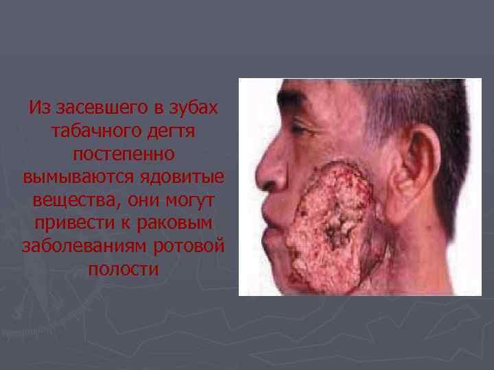 Из засевшего в зубах  табачного дегтя  постепенно вымываются ядовитые вещества, они