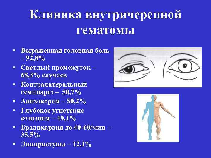 Статьи по внутричерепным гематомами