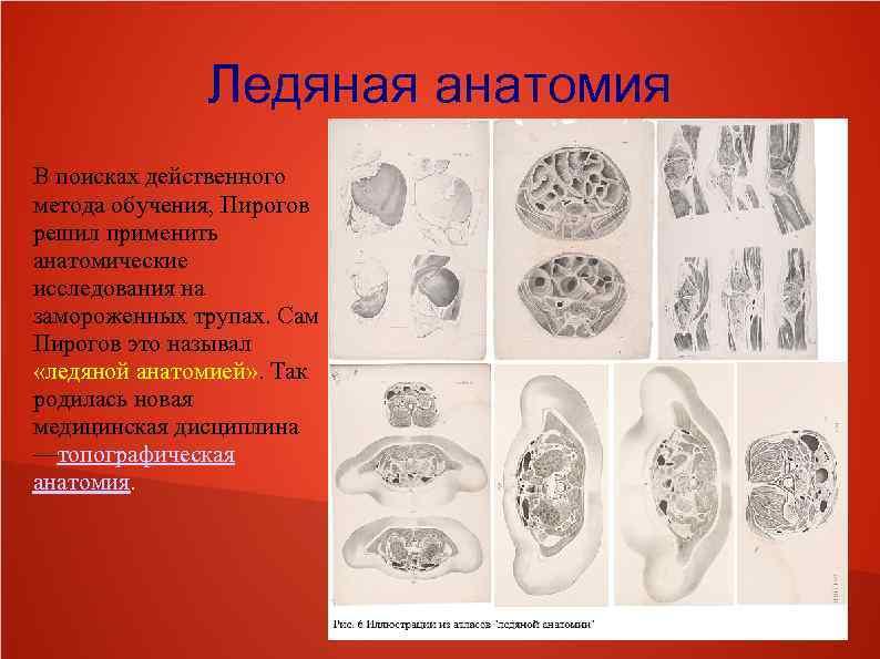 Ледяная анатомия В поисках действенного метода обучения, Пирогов решил применить анатомические