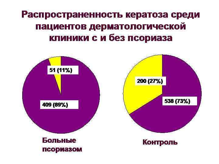 Распространенность кератоза среди  пациентов дерматологической клиники с и без псориаза   51