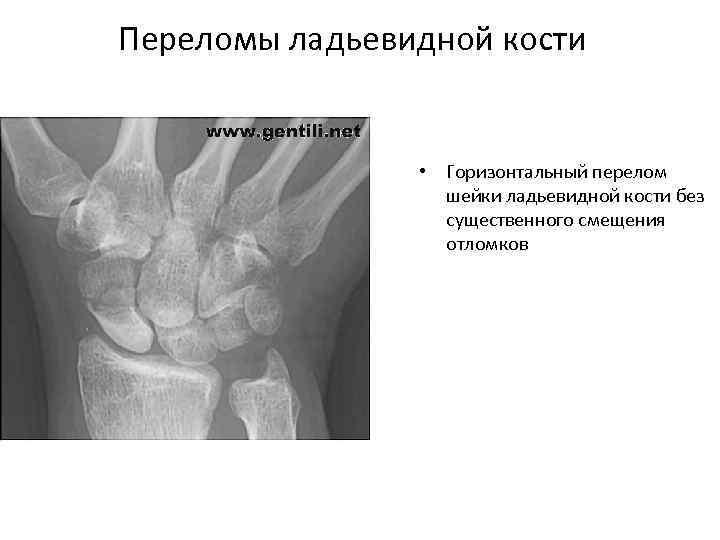 Переломы ладьевидной кости • Горизонтальный перелом шейки ладьевидной кости без существенного смещения отломков