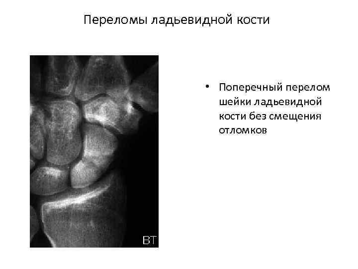 Переломы ладьевидной кости • Поперечный перелом шейки ладьевидной кости без смещения отломков