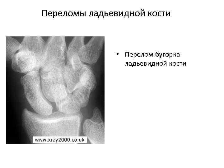 Переломы ладьевидной кости • Перелом бугорка ладьевидной кости