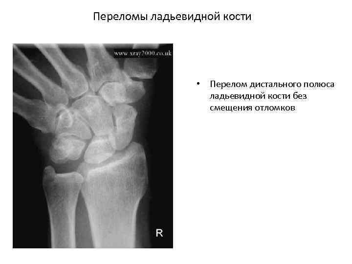 Переломы ладьевидной кости • Перелом дистального полюса ладьевидной кости без смещения отломков