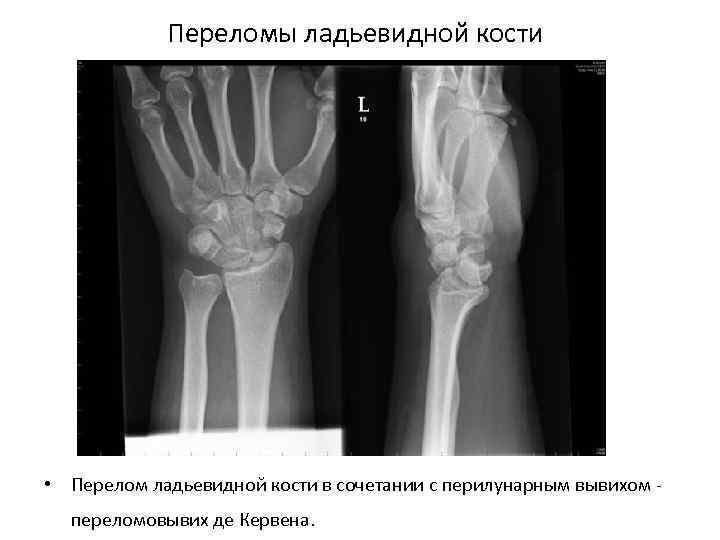 Переломы ладьевидной кости • Перелом ладьевидной кости в сочетании с перилунарным вывихом переломовывих де