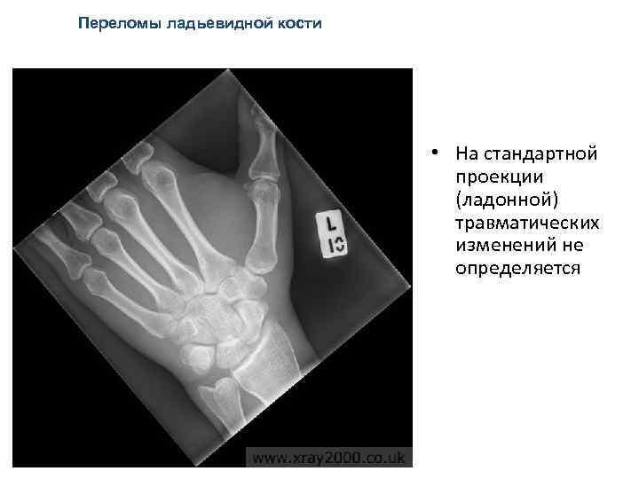 Переломы ладьевидной кости • На стандартной проекции (ладонной) травматических изменений не определяется