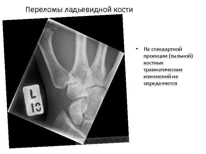 Переломы ладьевидной кости • На стандартной проекции (тыльной) костных травматических изменений не определяется