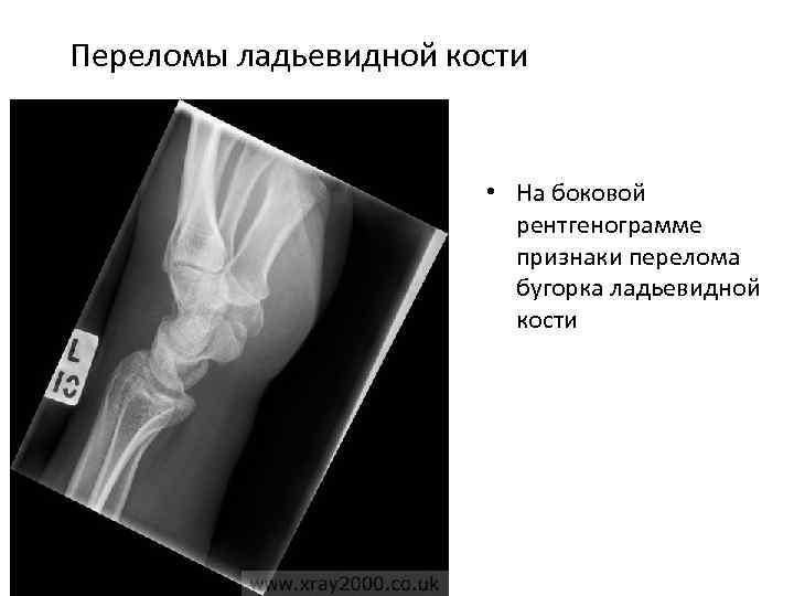 Переломы ладьевидной кости • На боковой рентгенограмме признаки перелома бугорка ладьевидной кости