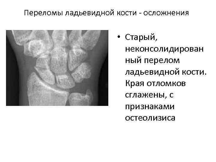 Переломы ладьевидной кости осложнения • Старый, неконсолидирован ный перелом ладьевидной кости. Края отломков сглажены,