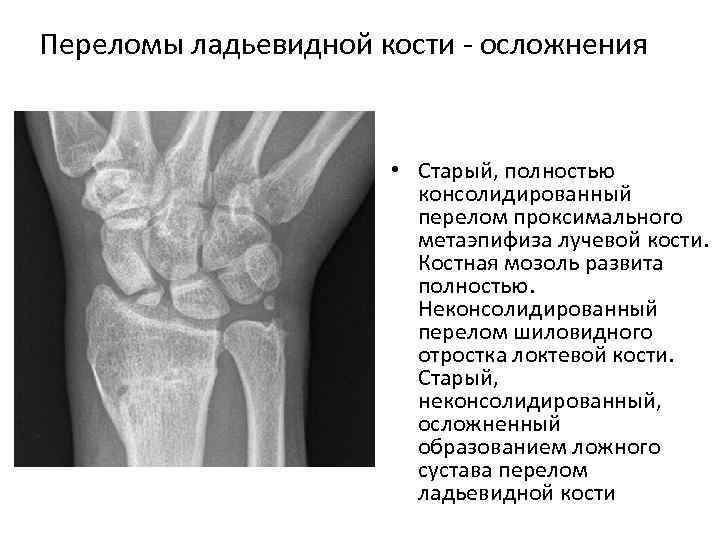 Переломы ладьевидной кости осложнения • Старый, полностью консолидированный перелом проксимального метаэпифиза лучевой кости. Костная