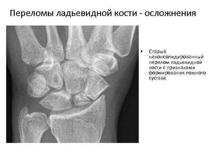 Переломы ладьевидной кости осложнения • Старый неконсолидированный перелом ладьевидной кости с признаками формирования ложного